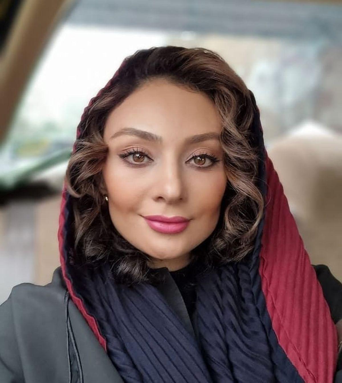 یکتا ناصر بعد از عمل زیبایی + عکس