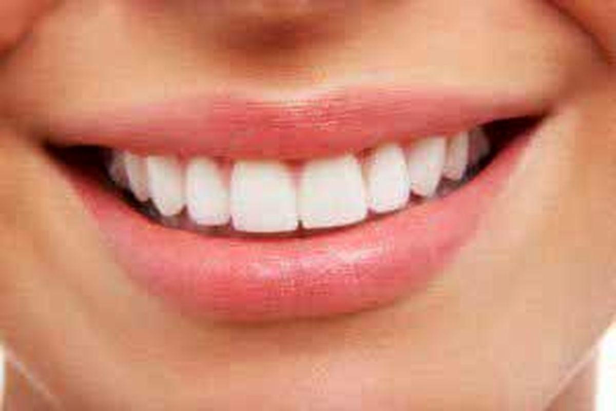 روش های طبیعی برای زیبایی دندان ها را بشناسید+جزییات