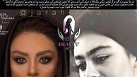 عمل زیبایی یکتا ناصر لو رفت  +عکس