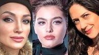 بازیگران زن مورد دار ایرانی/ریحانه پارسا، روناک یونسی، زهرا امیر ابراهیمی، مینا لاکانی و چکامه چمن ماه+عکس