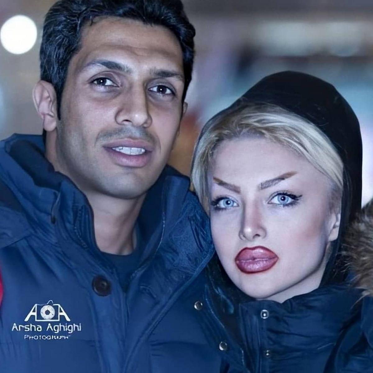 لب های پروتز شده و عجیبِ همسر سپهر حیدری + عکس